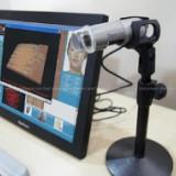 供應美容檢測儀 皮膚檢測儀 CBS美容皮膚檢測儀
