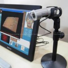 供应美容检测仪 皮肤检测仪 CBS美容皮肤检测仪