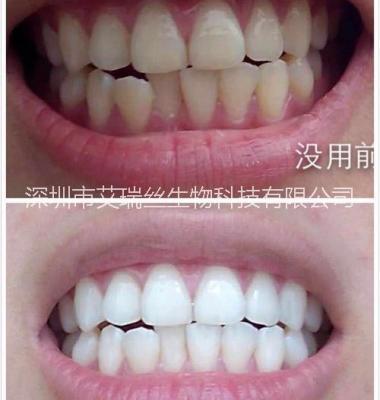 冷光牙齿美白仪图片/冷光牙齿美白仪样板图 (2)