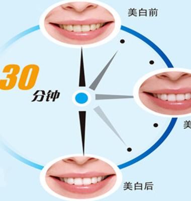 冷光牙齿美白仪图片/冷光牙齿美白仪样板图 (4)