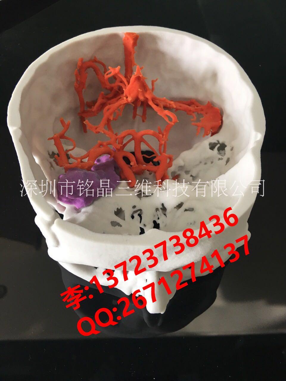3D打印医疗模型||医疗教学模型