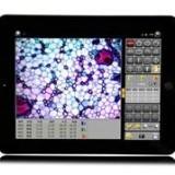 智能数码显微成像仪 液晶平板显示器加500万相机